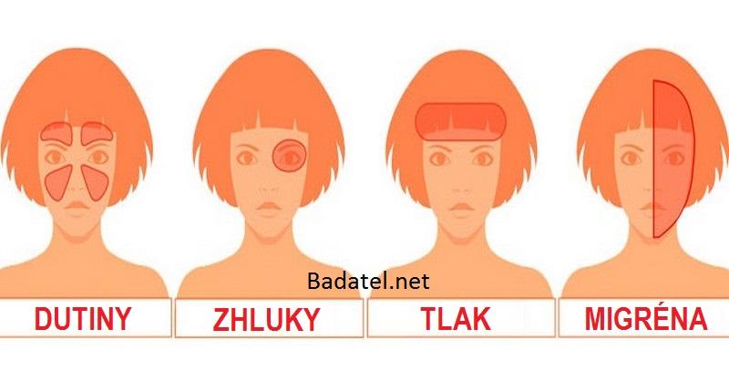 typ-bolesti-hlavy