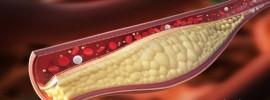 Koniec liekom na cholesterol: Jediná dávka týchto orechov ho zníži na 30 dní