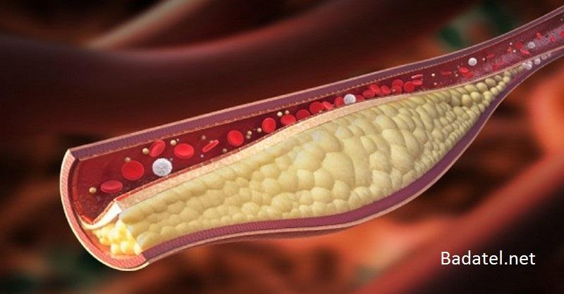 cholesterol-studia