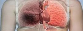 Vedci objavili ďalšiu, úplne nečakanú príčinu rakoviny pľúc