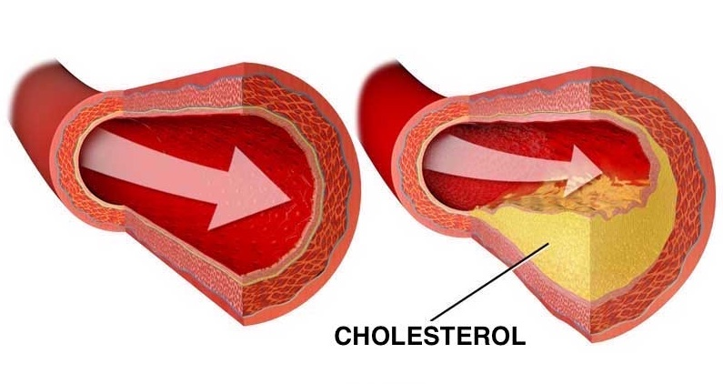 Týchto 12 potravín rozpustí a vyplaví usadený cholesterol z vašich ciev