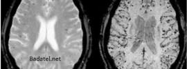 Minerálne vody, ktoré dokážu odstrániť hliník z vášho mozgu