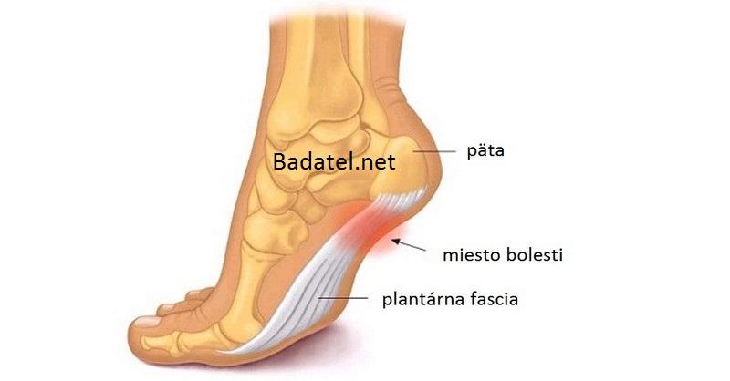 plantarna-fascia