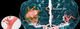Keď sa blíži mozgová mŕtvica, telo vyšle 6 varovných znamení. Neignorujte ich!