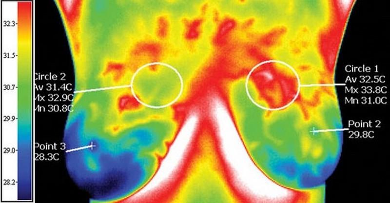 termografia-prsnikov