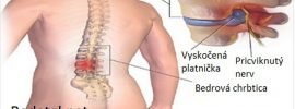 Tajomstvo bolesti chrbta je vo vašich chodidlách: Robte 15 minút týchto 5 cvikov