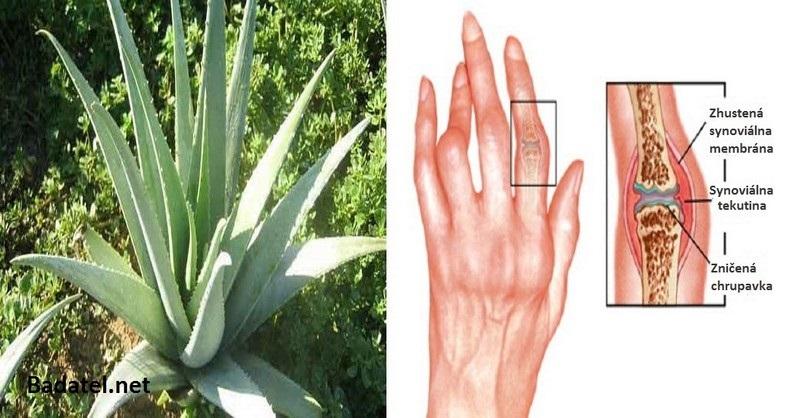 artritida-bylinky-oleje
