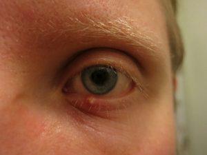 8 znakov, ktorými vám oči prezradia niečo o vašom zdraví