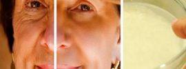 Tisícky žien si ju nevedia vynachváliť: Pleťová maska, s ktorou omladnete za jedinú noc