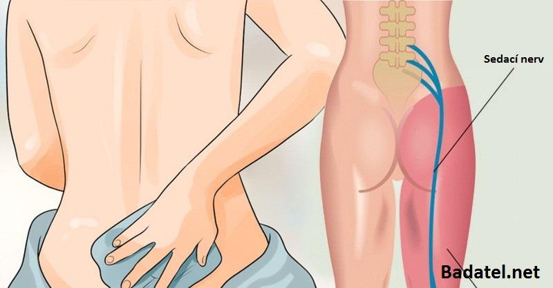 8 prírodných vecí na ischias: Skúste ich skôr než užijete ďalší liek proti bolesti