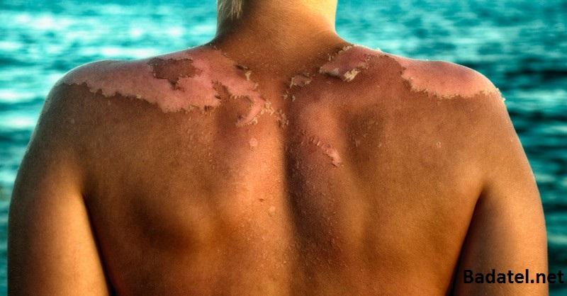 Ako opaľovací krém môže spôsobiť rakovinu kože a nie slnko