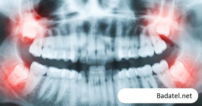 Odborníci varujú, že zuby múdrosti sa v 67% prípadoch trhajú zbytočne
