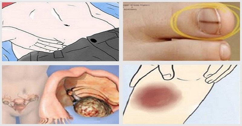20 skorých príznakov rakoviny, ktoré takmer každý ignoruje