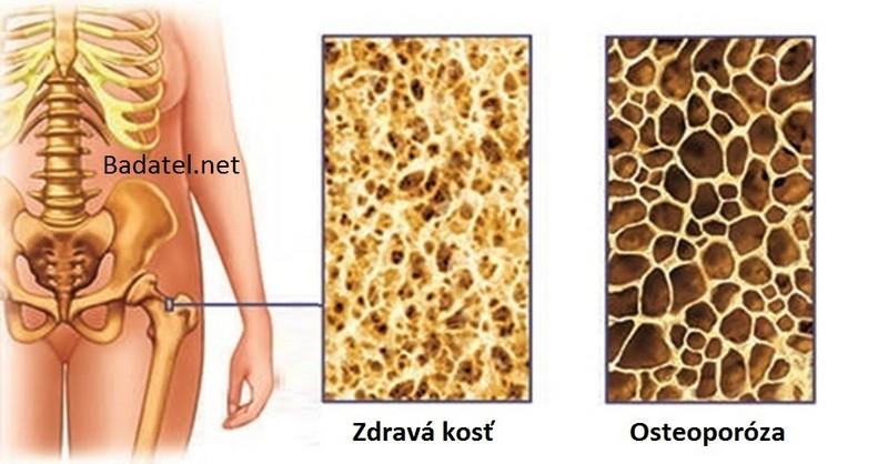 Ako pasterizované mlieko doslova ničí naše kosti zvnútra a živí rakovinu