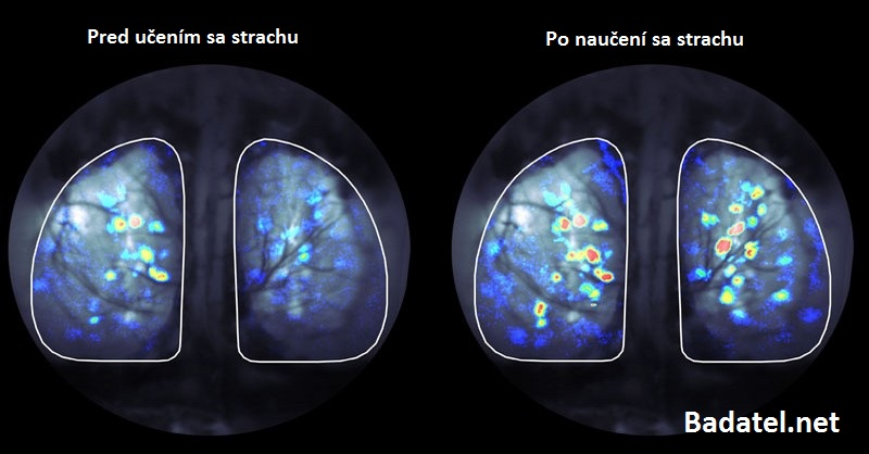 Prečo by ste mali naučiť svoj mozog, aby sa odnaučil byť chorý
