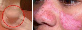 Príznaky lupusu: 13 signálov, ako včas rozpoznať túto hroznú chorobu