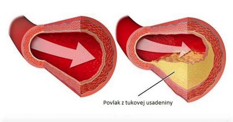 Dostupný enzýmový výživový doplnok, ktorý prečisťuje tepny, pomáha pri liečbe syndrómu karpálneho tunela, fibrocystickej choroby prsníka, problémov s pľúcami a odstraňuje mnohé iné zdravotné problémy