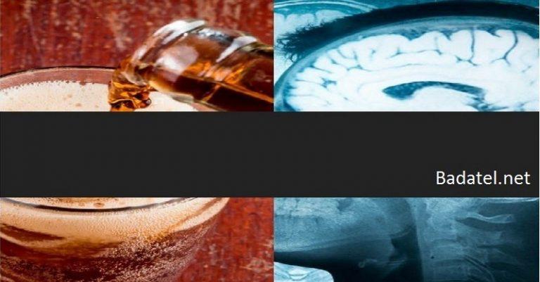 Zlá správa pre náš mozog: Tieto obľúbené sladené nápoje spôsobujú mŕtvicu a demenciu