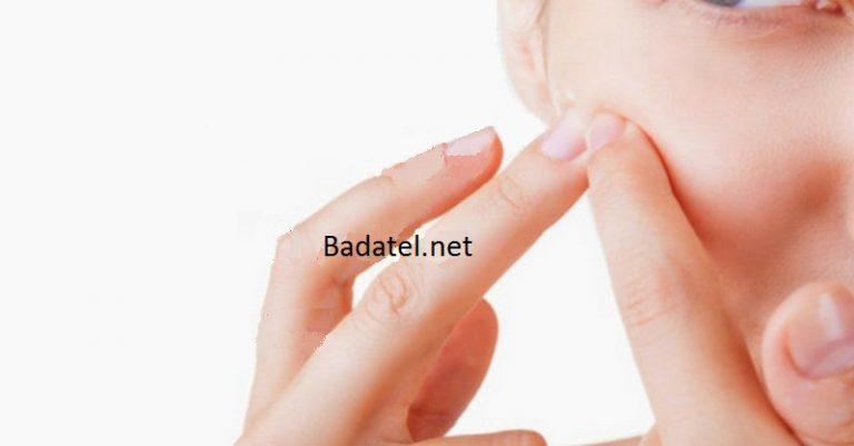 Ako sa pomocou ajurvédskej stravy vyhnúť akné