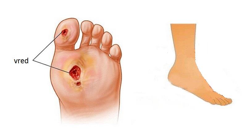 Cukrovka a vaše chodidlá: Dôležité fakty, ktoré musíte poznať
