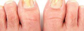 Ako rýchlo vyliečiť hubové ochorenie nechtov na nohách