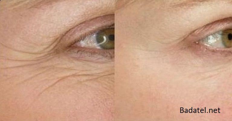 19 domácich liečebných prostriedkov na vrásky pod očami: zbavte sa ich teraz