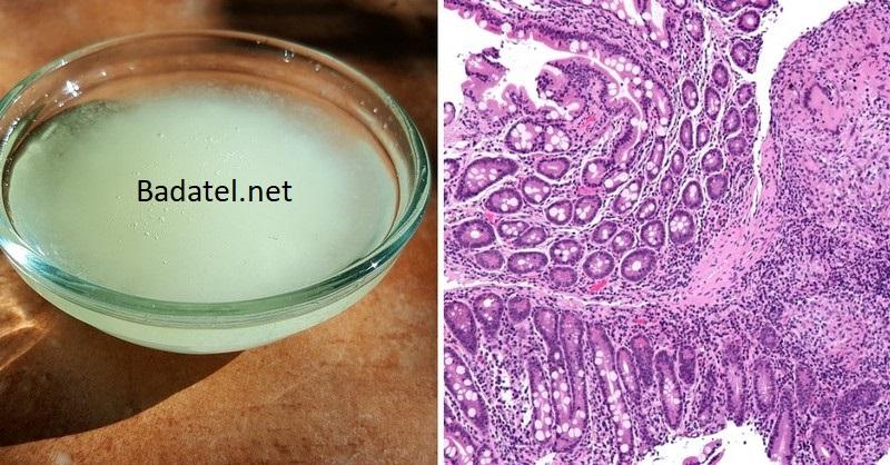Kokosový olej – prelom v liečbe Crohnovej choroby