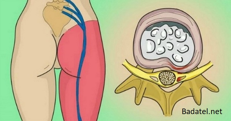 5 prírodných spôsobov ako uvoľniť zaseknutý sedací nerv a zbaviť sa bolestí