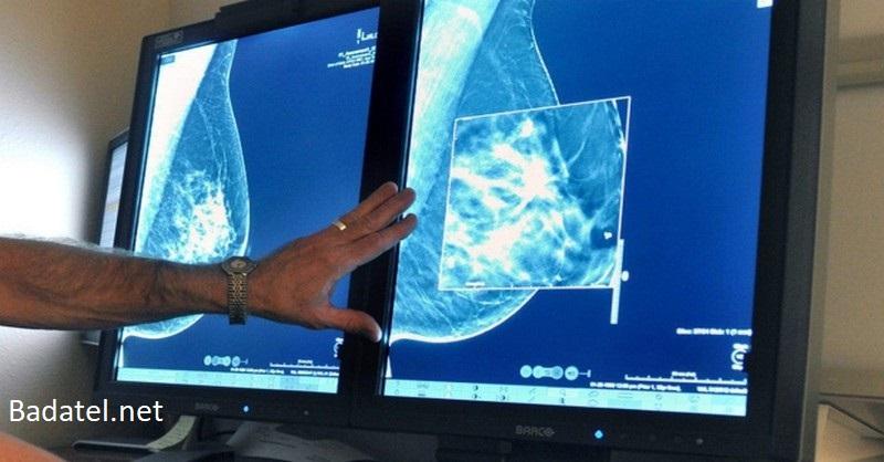 Najväčšia a najdlhšie trvajúca štúdia zistila, že mamografy nemajú žiaden prínos