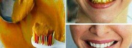 Dajte si na zubnú kefku trochu kurkumy a už viac nebudete na bielenie zubov používať nič iné!