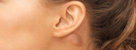 Čo by ste mali vedieť o hrčke za uchom