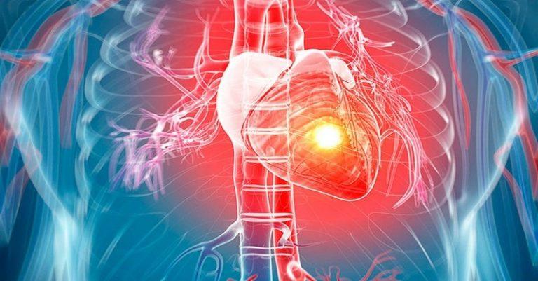Vedeli ste, že infarkt a zástava srdca nie je to isté?