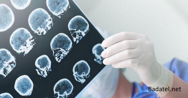 Predchádzať Alzheimerovej chorobe je jednoduchšie, než si myslíte!