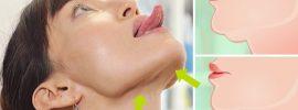 3 spôsoby, ako odstrániť tú dvojitú bradu bez tabletiek, injekcií alebo operácie