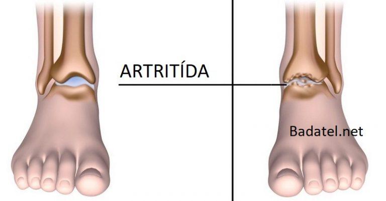 5 potravín, ktoré pomôžu znížiť bolesť spôsobenú artritídou