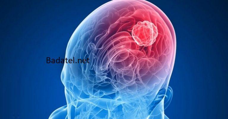 7 najčastejších príznakov nádoru na mozgu
