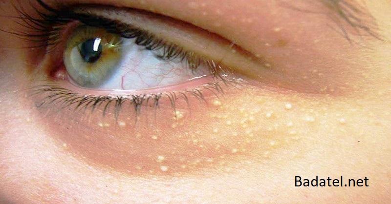 Ako odstrániť usadeniny cholesterolu okolo očí