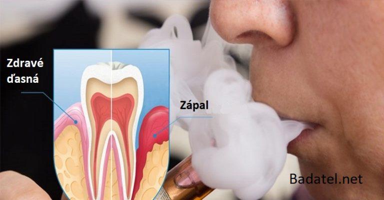 Šokujúca štúdia: Elektronická cigareta značky Vapor ničí 85 % buniek v ústach