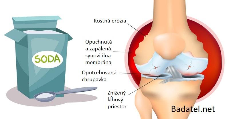 Ako používať sódu bikarbónu na zmiernenie bolesti pri artritíde