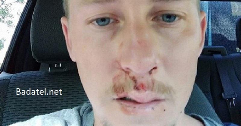 Skúsenosť mladého muža: Studená voda mu spôsobila šok