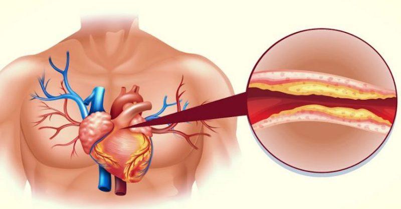 Konec vysokému cholesterolu aucpaným cévám (přírodní léčba)