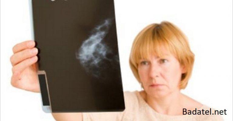 Je preukázané, že harmančekový olej zabíja až 93 % buniek rakoviny prsníka