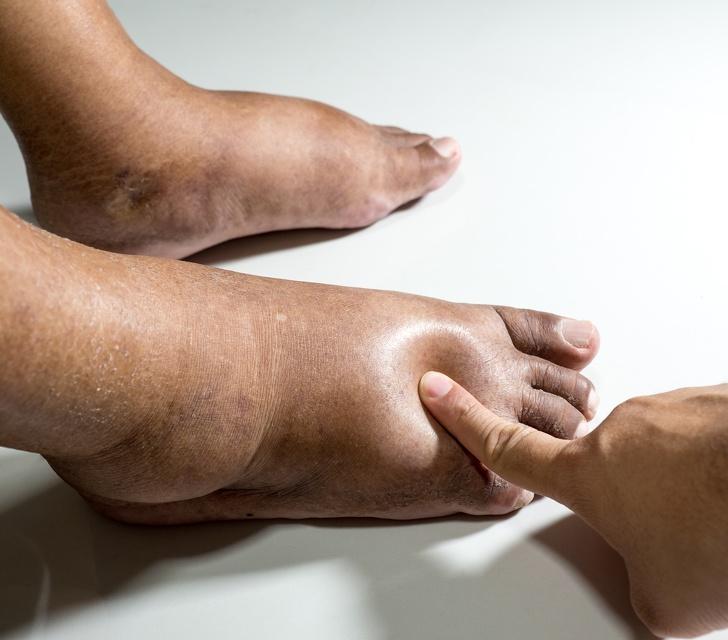 6 vecí, ktoré sa vám snažia povedať o vašom zdraví vaše opuchnuté nohy a členky