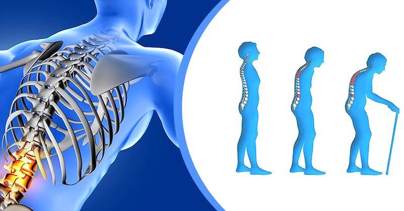 Zdravé asilné kosti: Ako poraziť osteoporózu apredísť zlomeninám