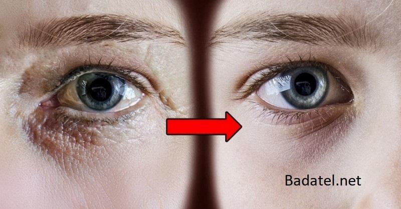 7 tvárových cvičení proti vráskam, ktoré vám dokážu ubrať celé roky