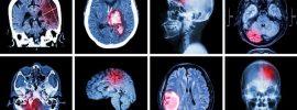 Podľa správy JAMA nízka dávka aspirínu súvisí s vnútrolebečným krvácaním