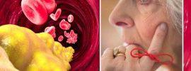 Nízka hladina cholesterolu môže zvyšovať vaše riziko Alzheimerovej choroby