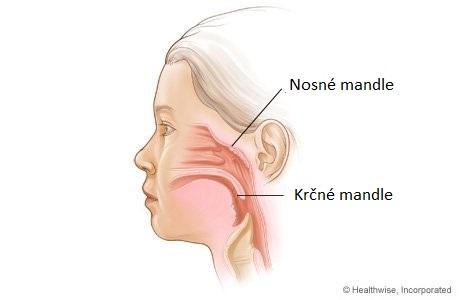 Štúdia zisťuje, že odstránenie krčných a nosných mandlí u detí zvyšuje riziko 28 chorôb