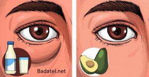 6 potravín, po ktorých môžete mať opuchnuté oči a 4, ktoré to vedia napraviť