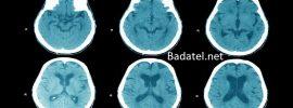 Neuroveda odhaľuje, ako môže mať 50-ročný človek mozog 25-ročného